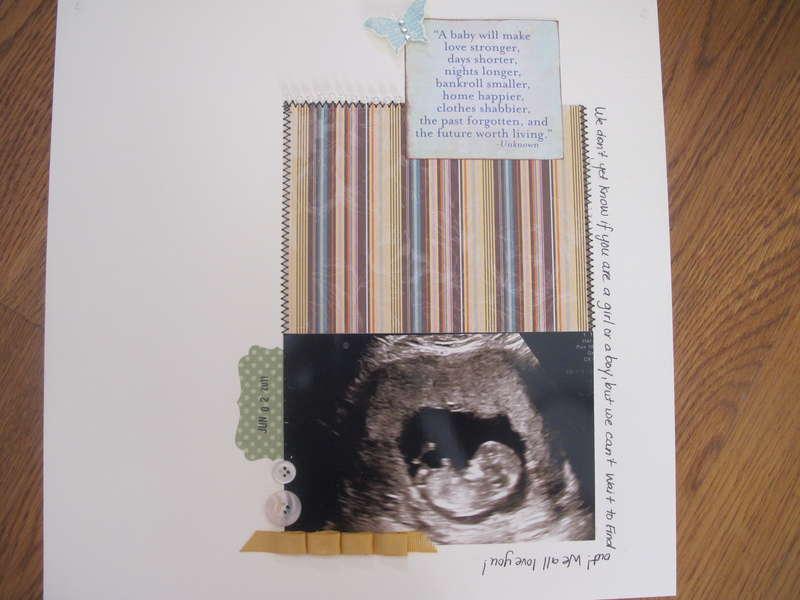 12 Week Ultrasound