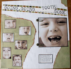 Going, Going.......Tooth Gone  **