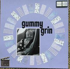 Gummy grin
