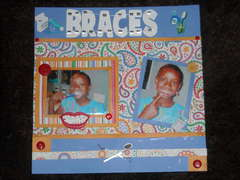 braaces
