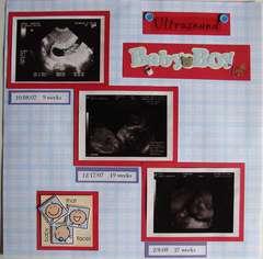 Baby Boy ultrasound