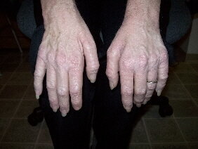What MD can do to ones Hands