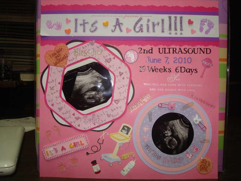 It's a girl!!!